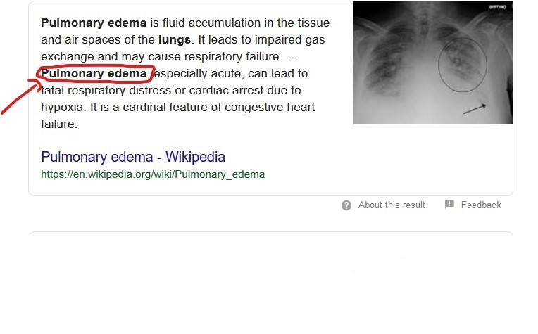 What is pulmonary edema?